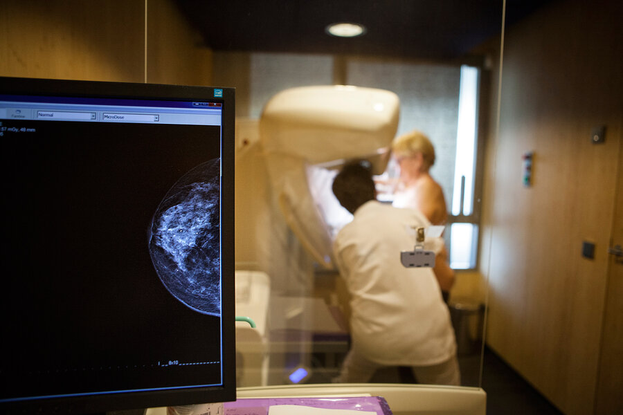 imagen de El 65% de las mujeres uruguayas con cáncer de mama demora al menos cinco semanas en recibir tratamiento, según datos del MSP